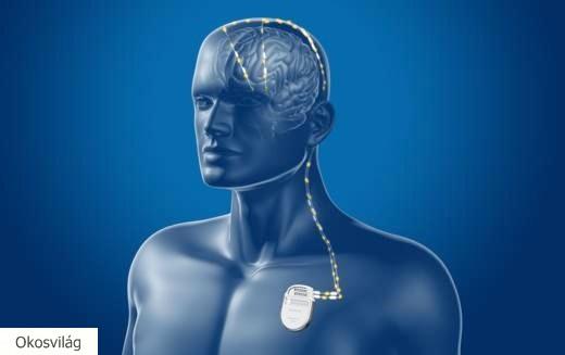 Áttörés a Parkinson-kór agyi pacemaker terápiájában